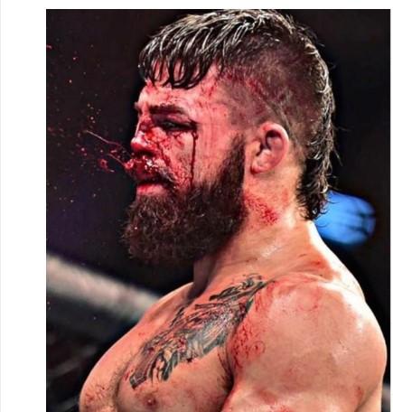Продолжи да се бори со скршен нос: Сурова повреда на УФЦ борба (ВИДЕО)