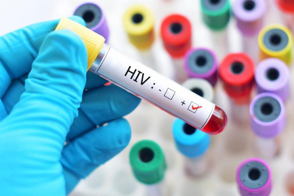 Значајно откритие на белгиски научници би можело да доведе до лек за ХИВ