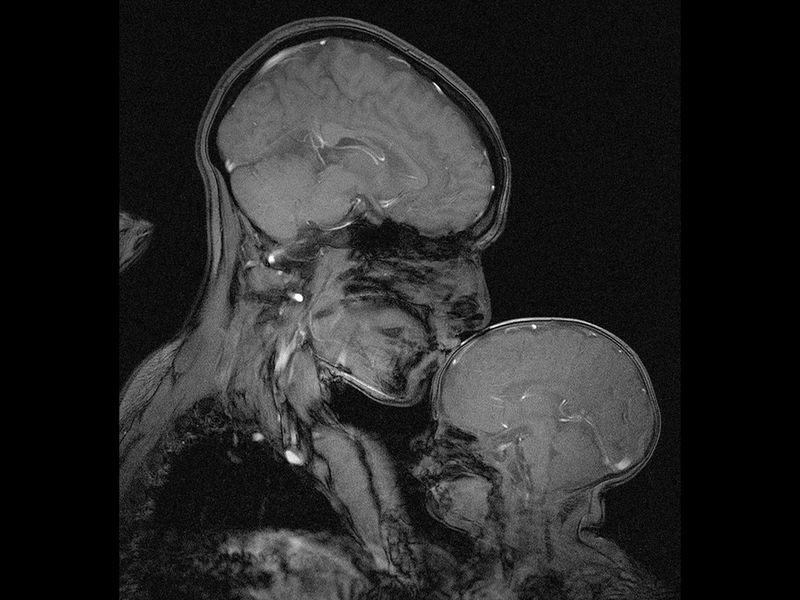 Магнетна резонанца за прв пат снимила мозочна активност која ја означува врската меѓу мајката и детето